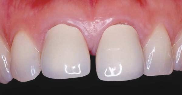 Before dental crowns.