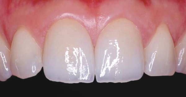 Porcelain dental crowns.