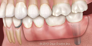 Dental implant supported removable partial denture.