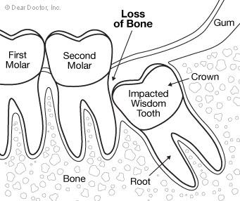 Removing wisdom teeth
