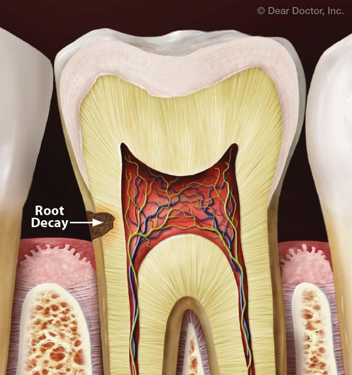 Root cavities.