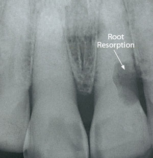 Root resorption.