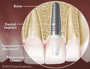 Same-day tooth replacement with dental implants.