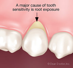 Sensitive teeth - root exposure