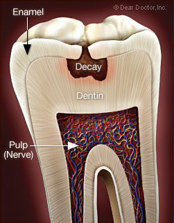 Severe Toothache Illustration