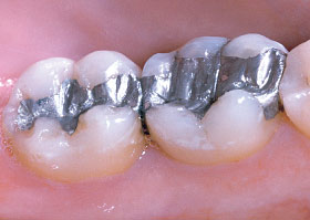 Silver Filling.