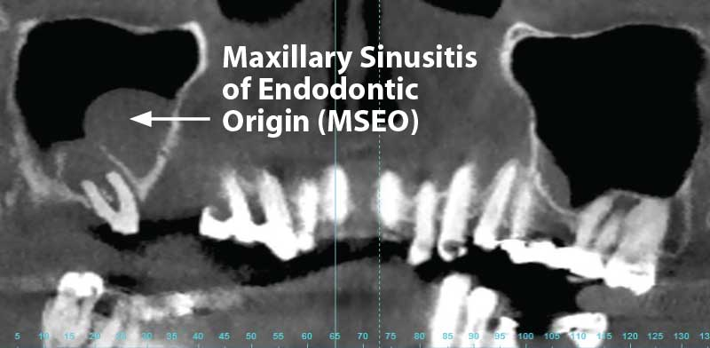 Maxillary Sinusitis of Endodontic Origin (MSEO).