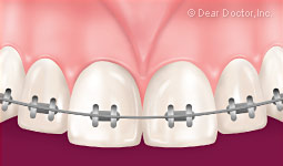 Muscle frenum braces