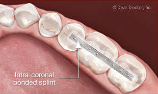 Splinting teeth