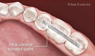 Splinting teeth