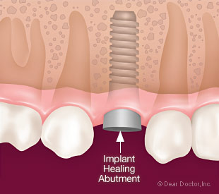 Dental implant healing abutment