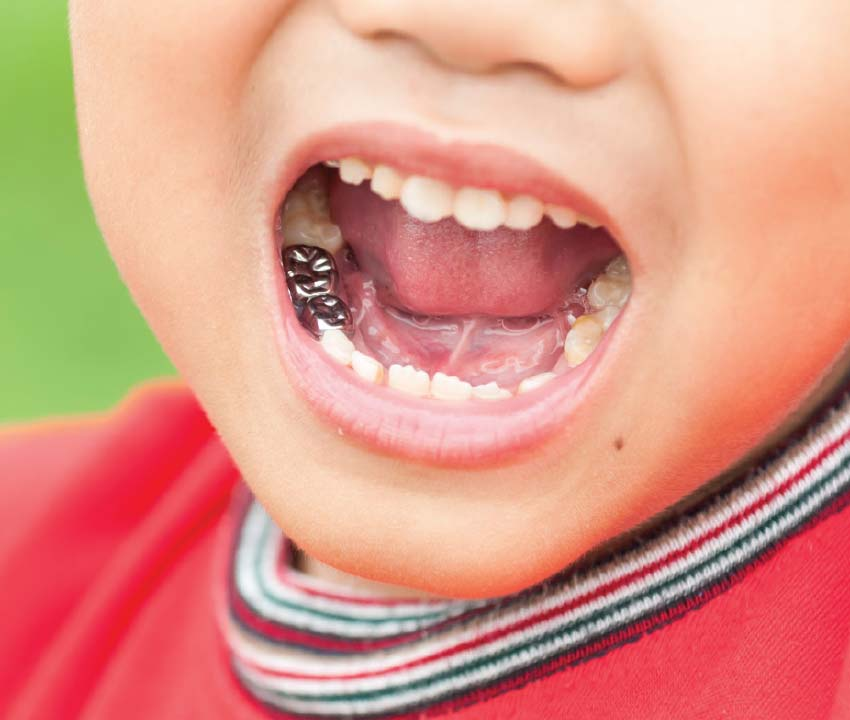 Stainless steel crowns for kids.