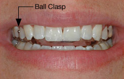 Ball clasp