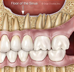 Floor of the sinus