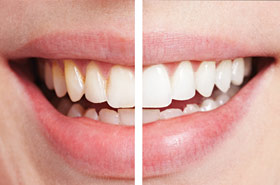 Tooth Whitening Safety Tips Are Bleaching Products Safe