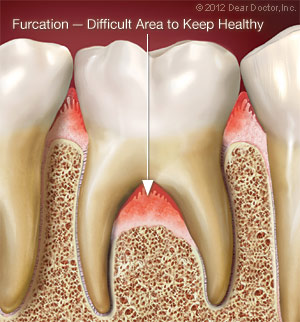 Furcation - Difficult Area to Keep Healthy.