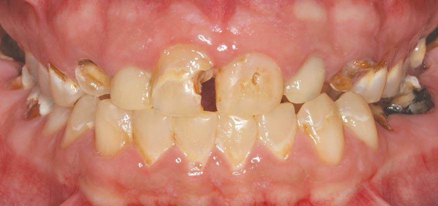 Vaping damage to teeth.