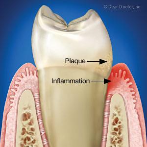 Warning signs of gum disease