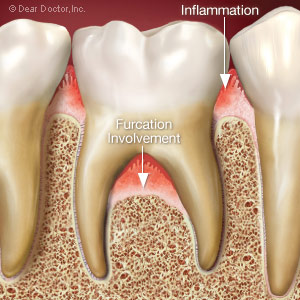 Gum disease causing bone loss in a furcation.