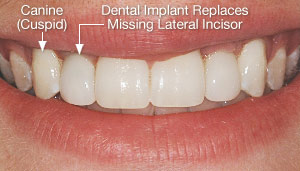 Dental implant replaced congenitally missing lateral incisor.