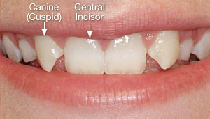 Missing lateral incisors.