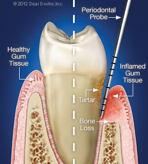 Periodontal Gum Disease.