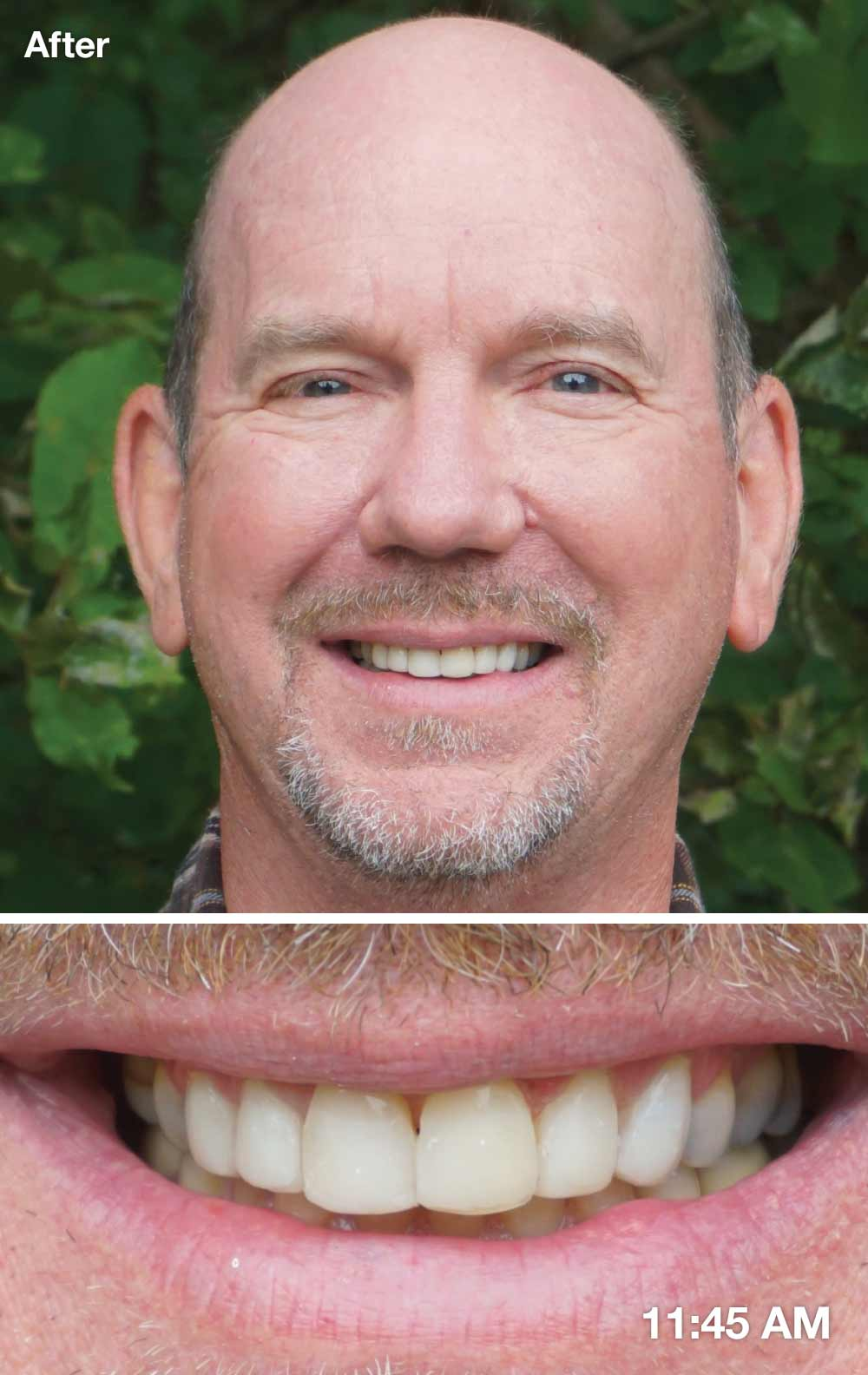 After direct veneers.