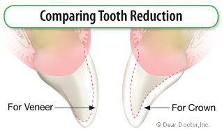 Comparing tooth reduction.