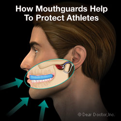 How mouthguards help to protect athletes