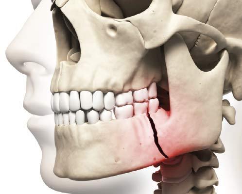 Broken Jaw.