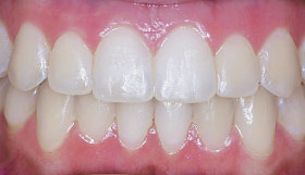 After Invisalign clear aligners.