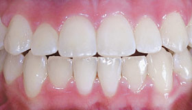 Before Invisalign clear aligners.