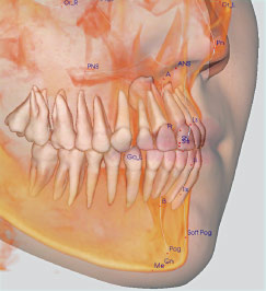 Cat Scan for orthodontics.