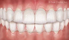 Invisalign clear orthodontic aligner.