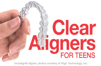 Invisalign clear orthodontic aligners for teenagers.