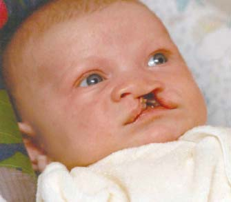 Harry with bilateral cleft lip.