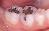 Tooth colored restorations before.