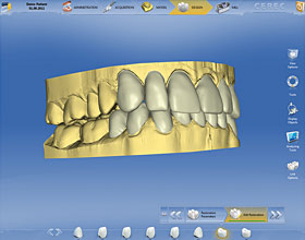 Cerec CAD/CAM 3d model on computer screen.