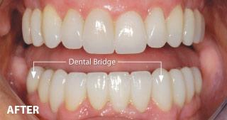 After Dental Bridge.