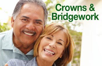 Crowns and bridgework.