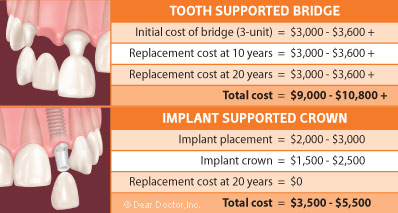 Comparing the Cost of Implants to Fixed Bridgework