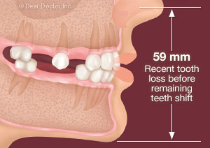 Best options for missing back teeth
