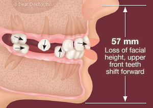 Without replacement of back teeth the teeth begin to shift.
