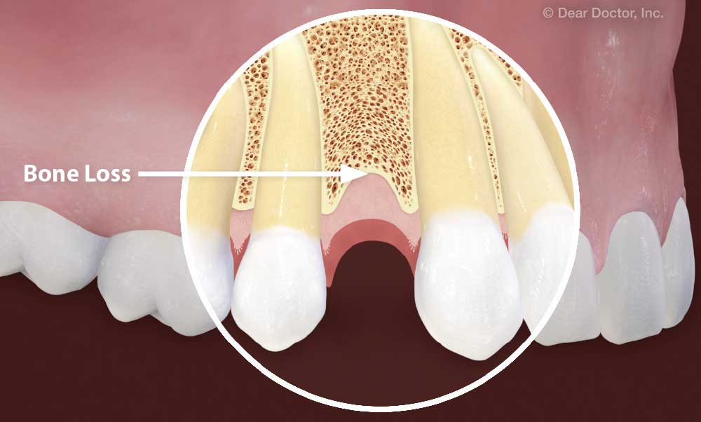 Dental Implants After Previous Tooth Loss