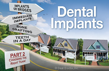 Dental implant options for care.