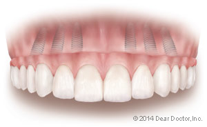 Single dental implant with temporary crown.