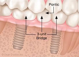 3-unit bridge with pontic.