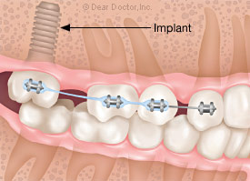 Dental implant for anchorage.