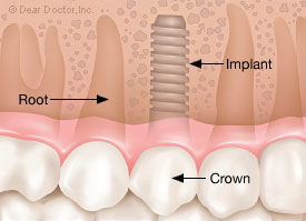 Full crown placed on dental implant.