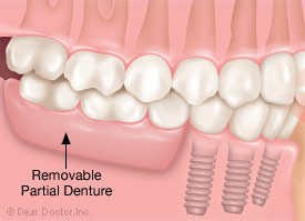 Removable partial denture.